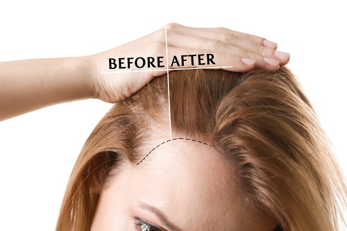 Pros and Cons Of Hair Transplant In Turkey